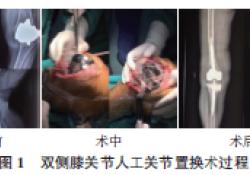 双侧膝关节人工关节置换术后相继感染1例