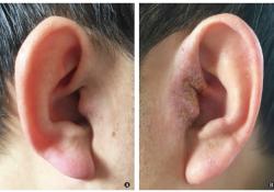 "中耳胆脂瘤并发真菌性外耳道炎及外耳<font color=""red"">湿疹</font> 1 例"
