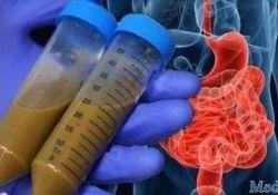 "BMC Gastroenterology:粪便<font color=""red"">菌</font><font color=""red"">群</font>移植可用于治疗溃疡性结<font color=""red"">肠炎</font>"