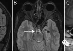 "Neurology:斜坡梗死后出现的颅神经<font color=""red"">麻痹</font>病例"