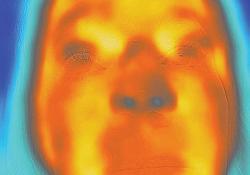 """Neurology:Horner<font color=""""red"""">综合</font><font color=""""red"""">征</font>热成像1例"""