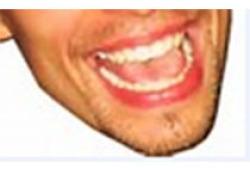 唇缺损局部组织瓣修复重建专家共识