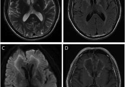"Neurology:见于成人起<font color=""red"">病</font>的<font color=""red"">X</font><font color=""red"">连锁</font>肾上腺脑白质营养不良的额叶受累"