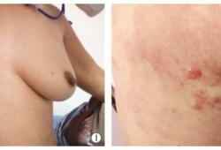 乳腺癌带状疱疹样皮肤转移1 例