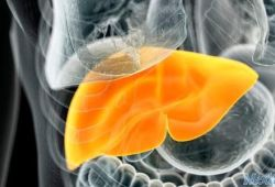 BMJ:非酒精性脂肪肝疾病与发生急性心肌梗塞风险因素