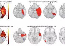 """Brain:脸盲<font color=""""red"""">症</font>竟与大脑损伤有关,可能为<font color=""""red"""">自闭</font><font color=""""red"""">症</font>治疗提供线索"""