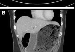 继发于甲型肝炎的胃轻瘫