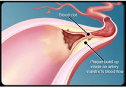 """Lancet Haemat:超声加速导管溶栓<font color=""""red"""">预防</font><font color=""""red"""">血栓</font>后综合征"""