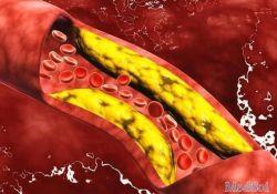 "BMC Gastroenterology:<font color=""red"">血清</font>甘油三酯升高和低密度脂蛋白胆固醇促进结直肠息肉的形成"