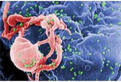 百时美施贵宝控告吉利德的CAR-T细胞疗法Yescarta专利侵权案胜诉,将赢得7.52亿美元的赔偿