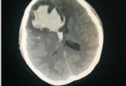 剖宫产术后脑出血误诊1例报告