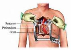 Circulation:经导管或外科主动脉瓣置换术后的人工瓣膜心内膜炎