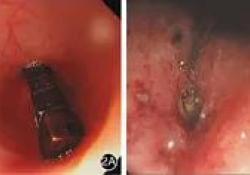 病例∣内镜下治疗:早期消化道磁性异物的首选方案
