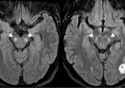 "Neurology:见于Leber<font color=""red"">遗传</font><font color=""red"">性</font><font color=""red"">视神经</font><font color=""red"">病</font>的黑质T2高信号"