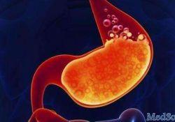 "Clinical Gastroenterology H: 托法替尼治疗溃疡性结肠炎可导致<font color=""red"">血清</font>脂质可逆性增加"