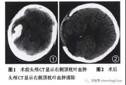 神经科临床病例讨论:早期妊娠-游走性腹痛-脑出血-基因检测-卟啉病