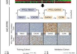 "Blood:两种新外周T细胞淋巴<font color=""red"">瘤</font>亚型:PTCL-GATA<font color=""red"">3</font>和PTCL-TBX21"