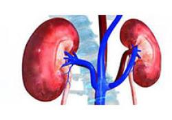 "AJKD:周围动脉疾病:有或没有<font color=""red"">CKD</font>的不良结局比较"