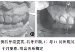 运用模型外科治疗上颌骨矢状骨折1例