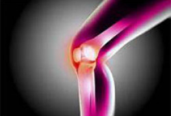 PLos One:骨关节炎疼痛的预后因素
