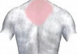 "Semin Arthritis Rheu:皮损范围和严重指数(CDASI)作为<font color=""red"">皮肌炎</font>临床结局工具的有效性"