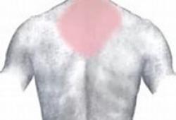 PLos One:纤维肌痛综合征的皮肤神经支配特征