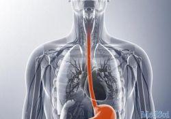 """J Gastroenterology: 腹部肥胖增加<font color=""""red"""">食道</font><font color=""""red"""">癌</font>的风险"""