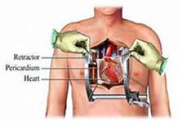 Chest:Birt-Hogg-Dubé综合征自发性气胸的遗传危险因素