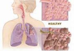 "Eur Respir J:囊性纤维化<font color=""red"">结构</font><font color=""red"">性</font>肺疾病的早期标志"