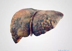 "Clinical Gastroenterology H:严重的酒精相关性肝炎患者的肝素样效应与出血,<font color=""red"">败血</font><font color=""red"">症</font>和死亡风险之间的关系"