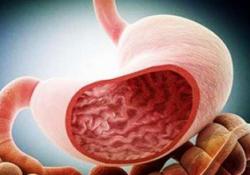 "Clin Gastroenterology H:<font color=""red"">胃癌</font>发病率不同<font color=""red"">的</font>地区会影响移入人口<font color=""red"">的</font><font color=""red"">胃癌</font>发病率"