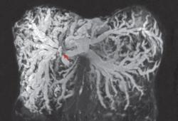 NEJM:肝内胆管扩张-病例报道