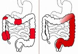 口服溃疡性结肠炎新药Brilacidin的I期临床试验