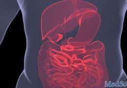 DCR:急性重症溃疡性结肠炎早期行手术治疗效果好