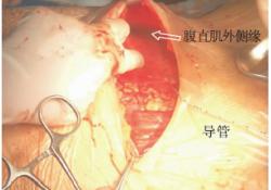 "<font color=""red"">全麻</font>剖宫产术中直视下腹横肌平面留置阻滞导管术后镇痛病例报道"