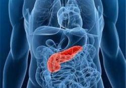 "J Gastroenterology: <font color=""red"">糖尿</font><font color=""red"">病</font>改善情况与自身<font color=""red"">免疫</font><font color=""red"">性</font>胰腺炎治疗的效果有关"