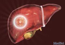 """J <font color=""""red"""">Gastroenterology</font>:直接<font color=""""red"""">作用</font>抗病毒药持续病毒学应答对HCV<font color=""""red"""">肝硬化</font><font color=""""red"""">患者</font>胃<font color=""""red"""">食管</font><font color=""""red"""">静脉</font><font color=""""red"""">曲张</font>"""