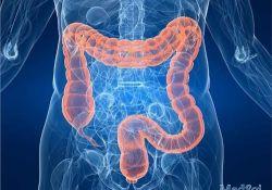 "J Gastroenterology: 患有症状性小肠狭窄克<font color=""red"">罗</font>恩<font color=""red"">病</font>的疾病进展研究"