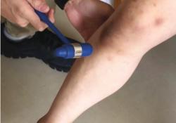 NEJM:亨廷顿氏病患者悬吊膝跳反射-病例报道