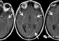 "Neurology病例:自身免疫<font color=""red"">性</font>胶质纤维酸性蛋白<font color=""red"">脑膜</font>脑脊髓炎"