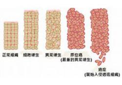 "Blood:一种新的儿童急性淋巴细胞白血病<font color=""red"">风险</font><font color=""red"">分层</font>方法"