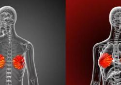 PNAS:三阴性乳腺癌靶向治疗新突破:mRNA编辑是关键!