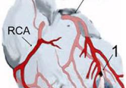 "JACC:血流储备分数在稳定<font color=""red"">缺血</font><font color=""red"">性</font><font color=""red"">心脏</font><font color=""red"">病</font>患者中的应用价值"