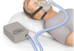 "Intens Care Med:ARDS 患者肺<font color=""red"">复</font><font color=""red"">张</font>术的意义"