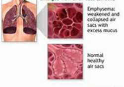 "BMJ:慢性呼吸道<font color=""red"">疾病</font><font color=""red"">负担</font>研究-1990-2017"