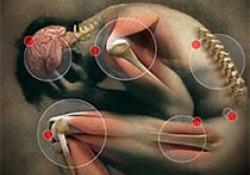 "Arthritis Rheumatol:<font color=""red"">内脏</font>性<font color=""red"">肥胖</font>与疼痛相关,但与结构性骨关节炎无关"