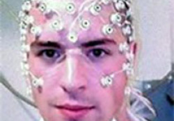 Lundbeck的CGRP单抗Vyepti用于预防偏头痛,获得美国批准