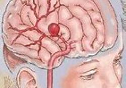 """Stroke:血管再通降低脑水肿的<font color=""""red"""">风险</font>,增加脑实质出血的<font color=""""red"""">风险</font>"""