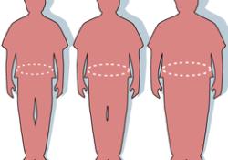 Stroke:肥胖患者还能服用双抗吗?
