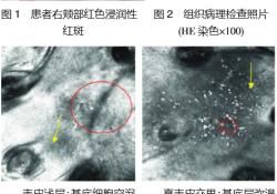 儿童面部局限型盘状红斑狼疮 1 例及反射式共聚 焦显微镜观察